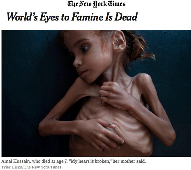 La guerra che non vogliamo vedere provoca questi orrori, in Yemen e in molte altre parti del mondo
